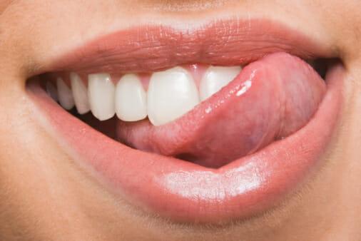 A fogainkon érzett érdes lerakódás a felhalmozódott plakk jele, ami fogkövesedéshez vezet. /Kép: WordPress.com/