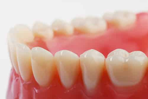 Ha fogtömésünk kiesett, minél hamarabb keressük fel fogorvosunkat a sikeres helyreállítás érdekében. /Kép:illusztráció, amazonaws.com/