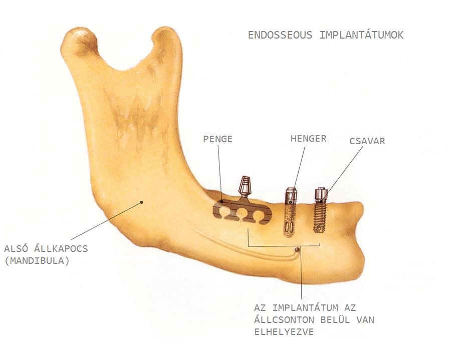 Endosseous, azaz csonton belüli implantátum típusok. /Kép: Dentalimplants.uchc.edu/