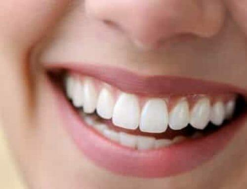 Fehér fogíny – Okok, kezelés