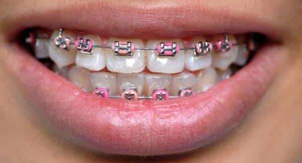 fogszabalyzo fogszuvasodas