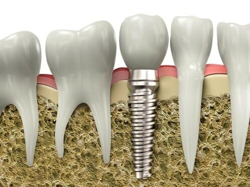 Többféle implantátum (műgyökér) típust különböztetünk meg, az egyik legnépszerűbb a csavar formájú típus.