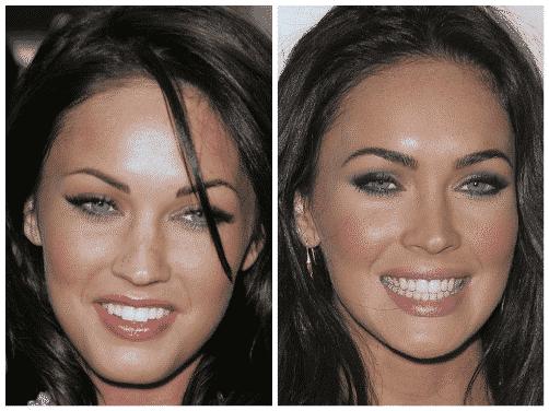 Megan Fox mosolya előtte-utána.