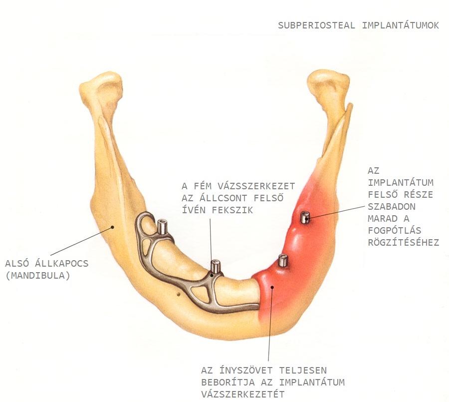 Subperiosteal, azaz csontra vagy íny alá helyezett implantátum. /Kép: Dentalimplants.uchc.edu/