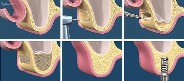 Az arcüreg emelés (sinus lift) eljárás mozzanatai (bal fentről haladva). /Kép: Methuenperio.com/