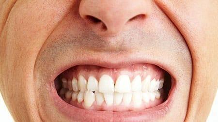 fogcsikorgatas