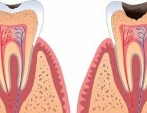 A fogszuvasodás visszafordítható – Ózonterápia a fogászatban
