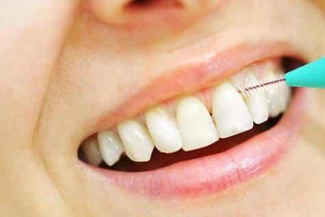 Az ínygyulladás megelőzéséhez hozzátartozik a mindennapos fogköztisztítás.