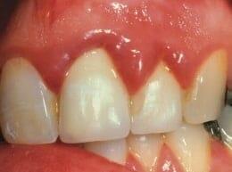 Az ínygyulladás jele a duzzadt, kivörösödött fogíny. /Kép: vitamin-resource.com/