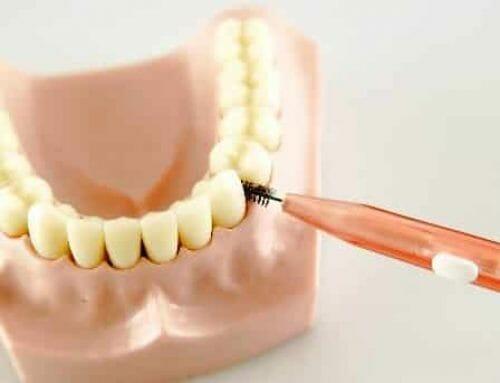Fájdalmas-e a fogköztisztítás?