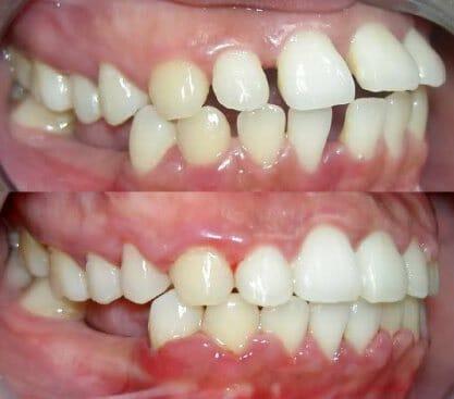 Az alsó és felső fogsoron egyaránt jelentkező diasztéma zárása fogszabályzóval. /Kép: Photobucket.com/