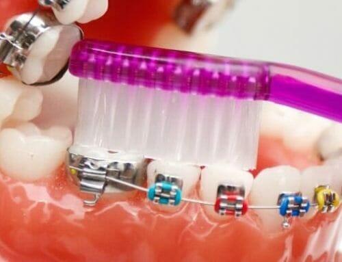 Fogínyvérzés fogszabályozás idején