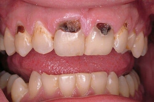 Fognyaki szuvasodás a felső fogsoron. /Kép: Dentalaegis.com/