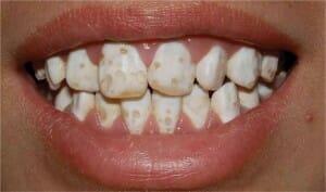 A hypoplasia következtében a fogzománc felszínén apró lyukak láthatók. /Kép: Studyblue.com/