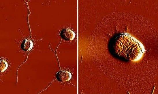 Bal oldalon: kezeletlen, jobb oldalon: Thiophenone-nal kezelt kólibaktérium sejtek. A jobb oldalon látszik, hogy a fonálszerű kapcsolódási pontok hiányoznak.