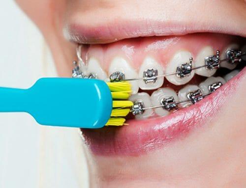 A 8 legjobb fogkefe fogszabályzóhoz