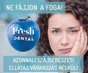 300x250-px-fresh-24-surgosegi_szajseb