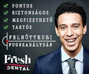 300x250_felnottkori_fogszab
