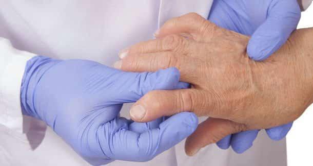 A reumatoid arthitisz tünetei az ízületi gyulladás, ízületi merevség, később pedig a csontállomány pusztulása. /Kép: Dental Tribune/
