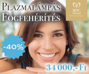 fogfeherites-akcio-mdc-300-250