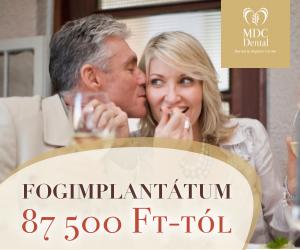 mdc-fogimplantatum-akcio-300-250