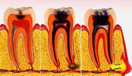 Gyökérhártya gyulladás (periodontitis) kialakulása.