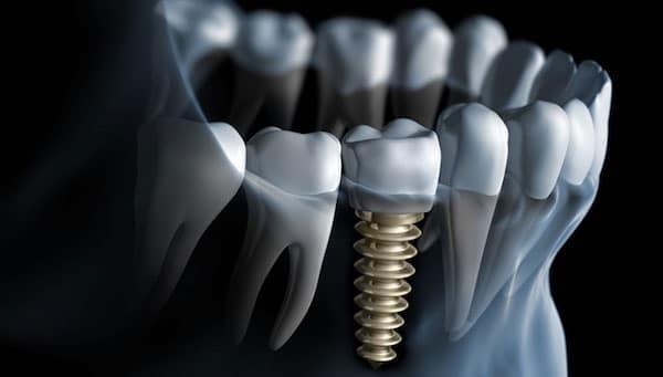 fogaszati-implantatumok-feluletkezeles