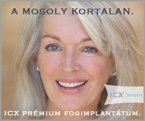 icx-fogimplantatum-300x250