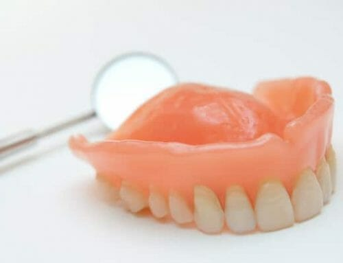 A rosszul illeszkedő műfogsorok növelik a szájüregi rák kockázatát