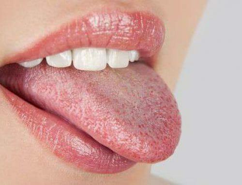 Leukoplakia – okok, tünetek, kezelés