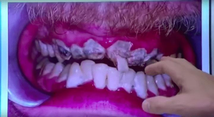 Jay 20 éve nem mosott fogat: rengeteg felhalmozódott fogkő és súlyos fogszuvasodás figyelhető meg fogsorán. (Kép: Only Human/ Youtube)