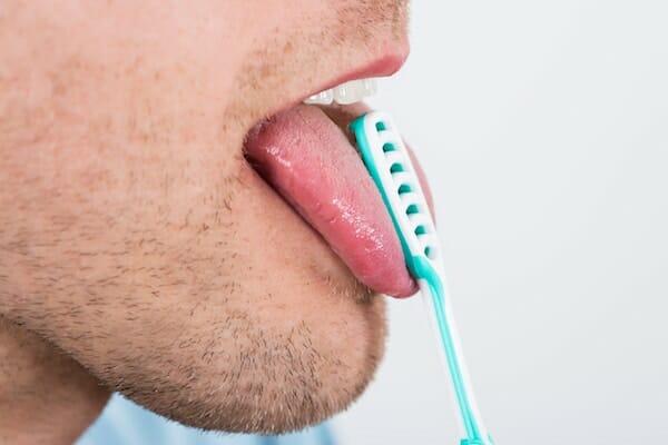 Szőrös nyelv – okok, tünetek, kezelés
