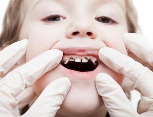 Gyermekkori fogszuvasodás – a baktériumok teszik ellenállóvá a gombás sejteket