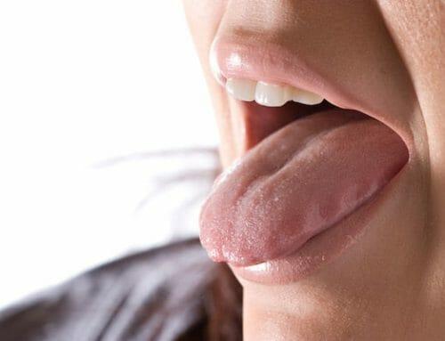 A nyelv fájdalma – okok, tünetek, kezelés