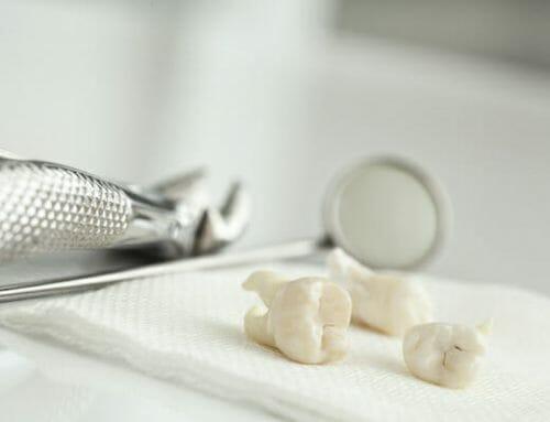 9 tipp arra, hogy mit csinálj foghúzás előtt és után